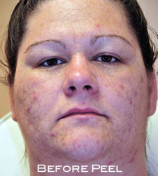 woman with acne had peel