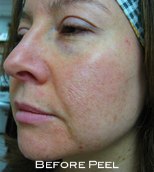 woman after microlaser peel